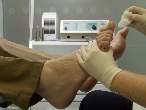 chiropody treatment