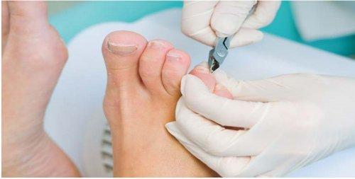 Neston Chiropody & Podiatry